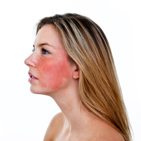 How To Cure Rosacea On Face Naturally